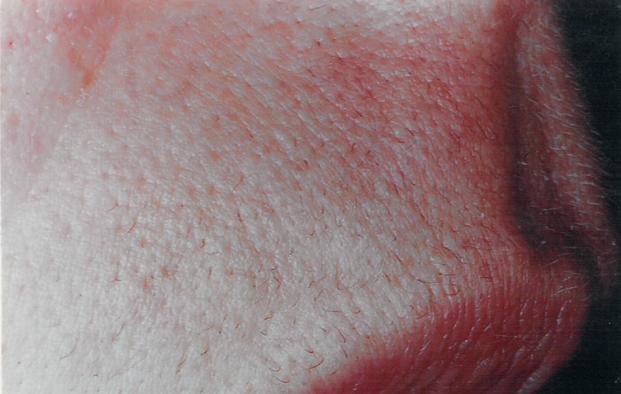 facial-hair-removal-virginia