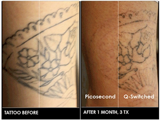 Laser Tattoo Removal David H Mcdaniel Md Laser Center And
