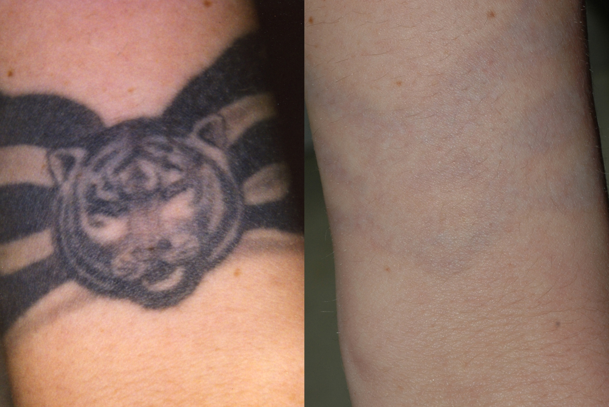 Laser tattoo removal virginia beach david h mcdaniel for Laser remove tattoo price
