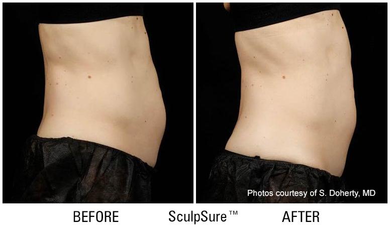 SculpSure1a