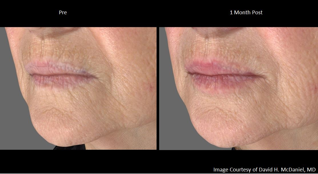 Juvederm Volbella | David H  McDaniel, MD Laser Center and Medical Spa