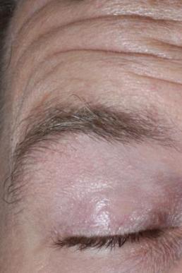 botox-virginia