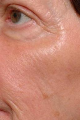 fraxel-co2-repair-laser-virginia