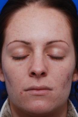 fraxel-erbium-1550-nm-virginia
