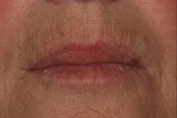 juvederm-volbella-virginia