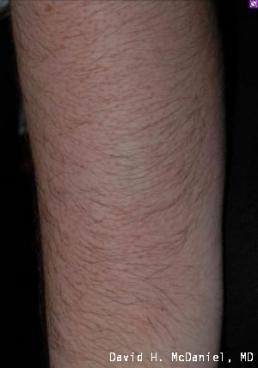 laser-hair-removal-virginia