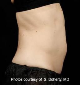 sculpsure-fat-reduction-laser-virginia