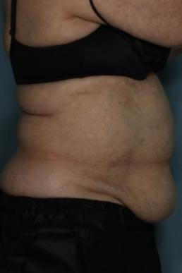 zeltiq-coolsculpting-virginia